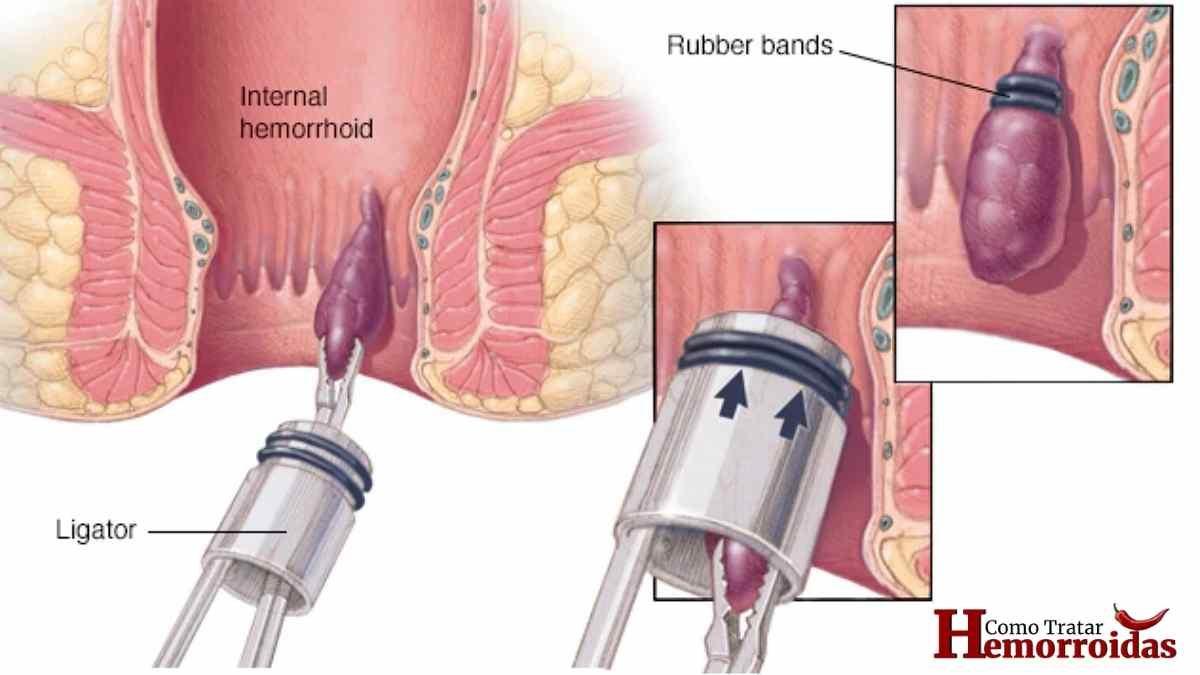 Hemorroida Interna: Sintomas e Tratamentos