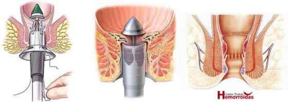 Hemorroida externa tratamento cirurgico