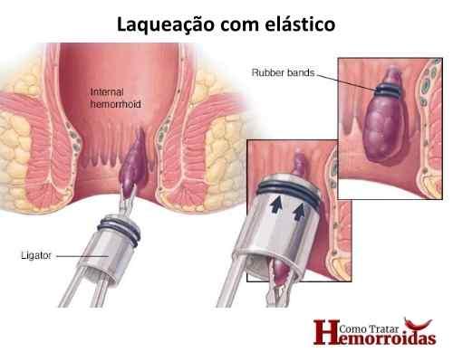 Cirurgia de hemorroida- laqueação
