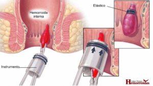 hemorroida cronica