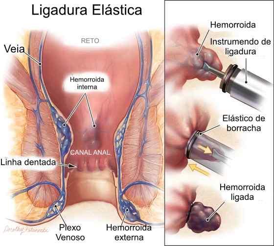 como é feita a ligadura elástica de hemorroidas