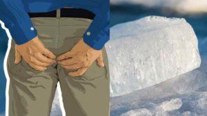 hemorroida tratamento caseiro gelo